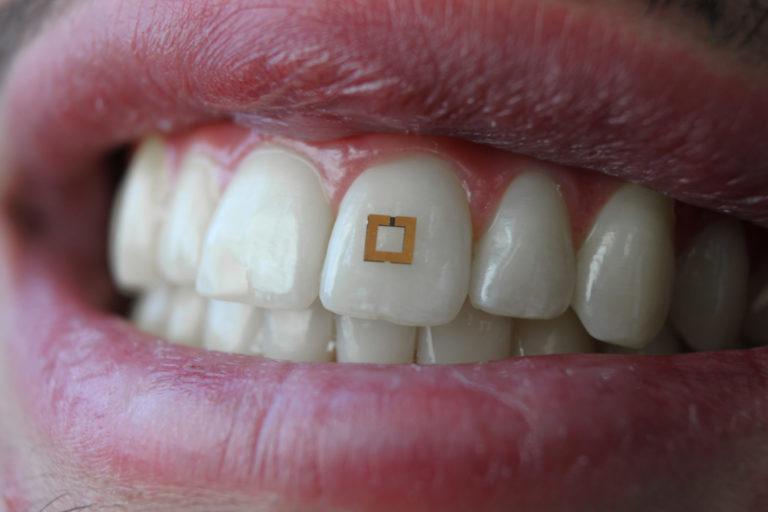Ein winziger Sensor klebt auf einem Zahn.