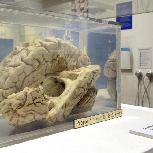 Wie das Gehirn funktioniert