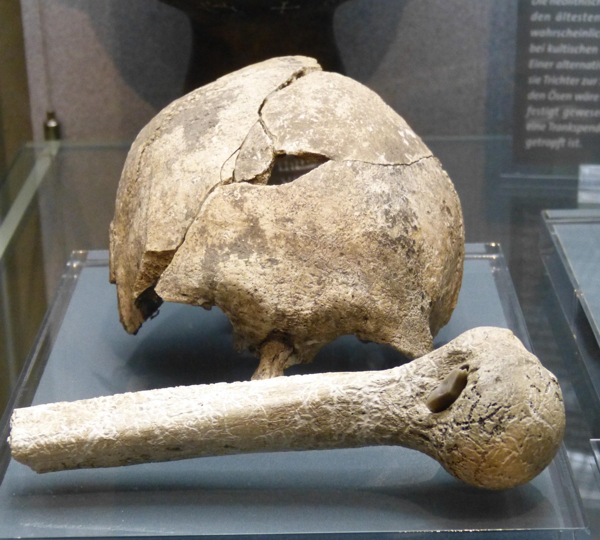 Resultat eines grossen Köpfe-Einschlagens vor Tausenden von Jahren: Gespaltener Schädel und ein Knochen mit darin steckender Pfeilspitze, gefunden bei Schönstedt in Deutschland. Ausgestellt in einem Glaskasten in einem Museum.