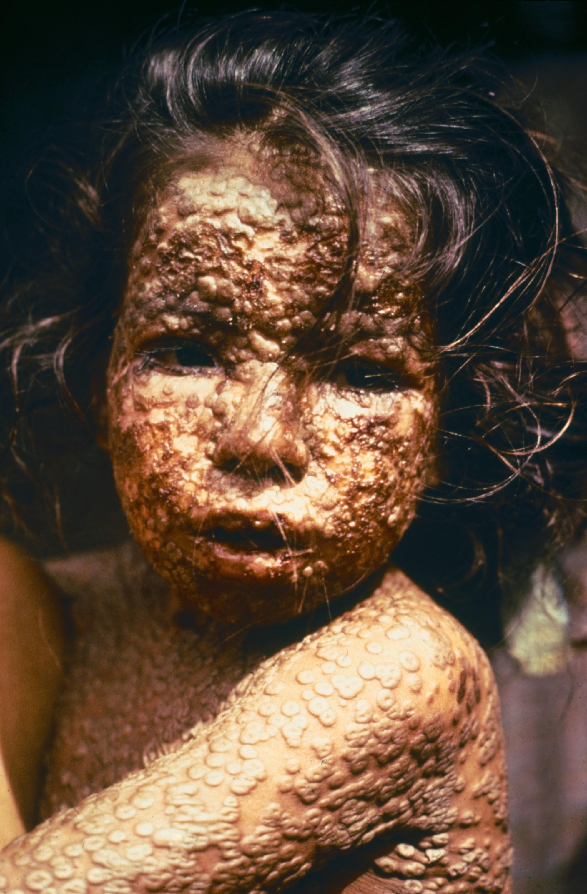 Ein mit Pocken infiziertes Kind (Bangladesh 1973).