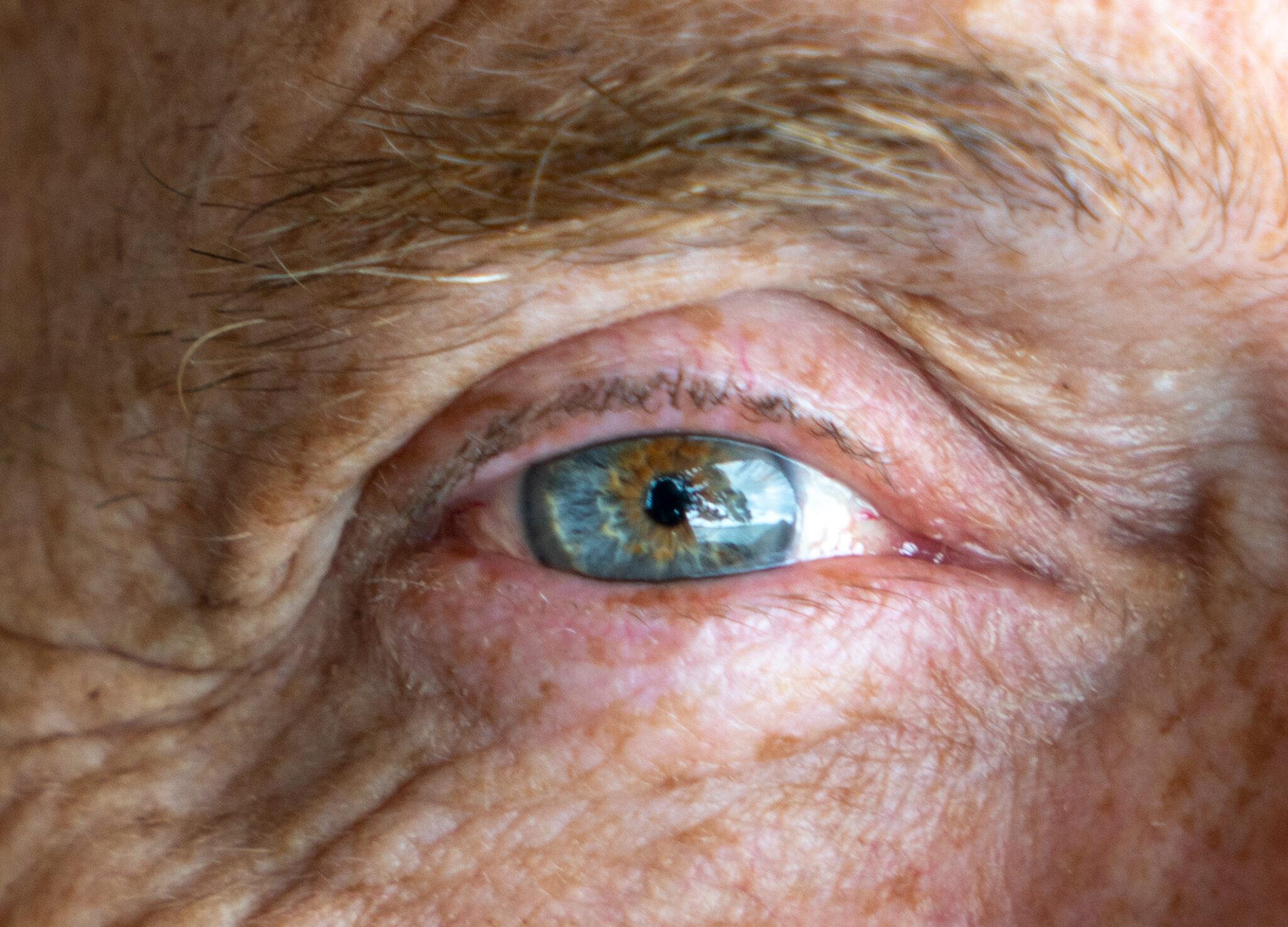 Auge eines älteren Mannes