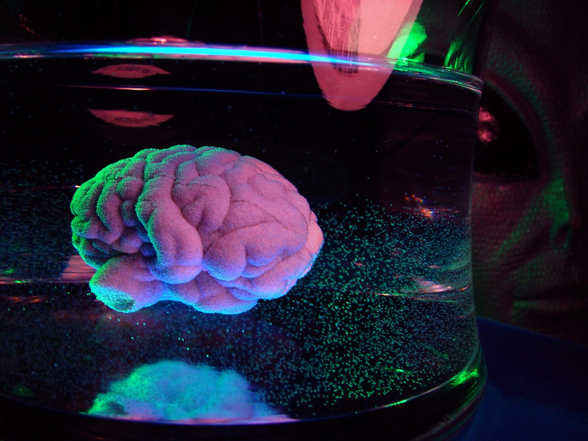 Gehirn in Gefäss
