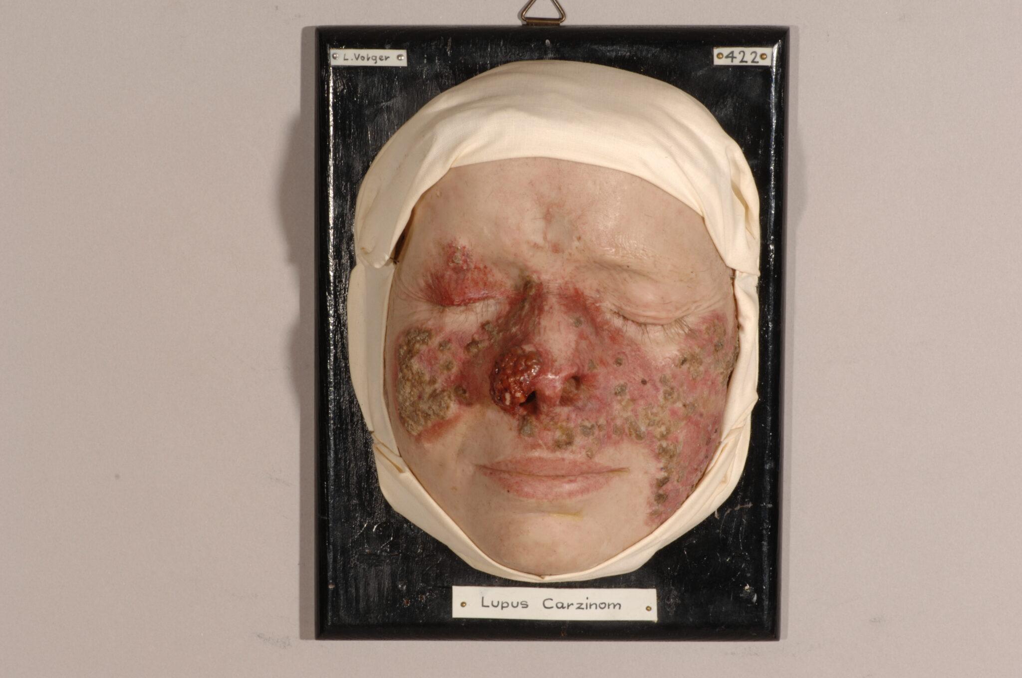 Darstellung von Hautkrebs durch chronische tuberkulöse Entzündung der Haut.