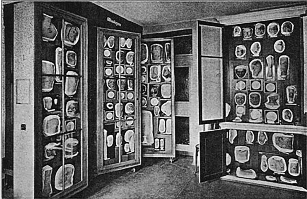 Die Moulagensammlung um circa 1926, die damals direkt neben dem Hörsaal der Dermatologischen Klinik untergebracht war.