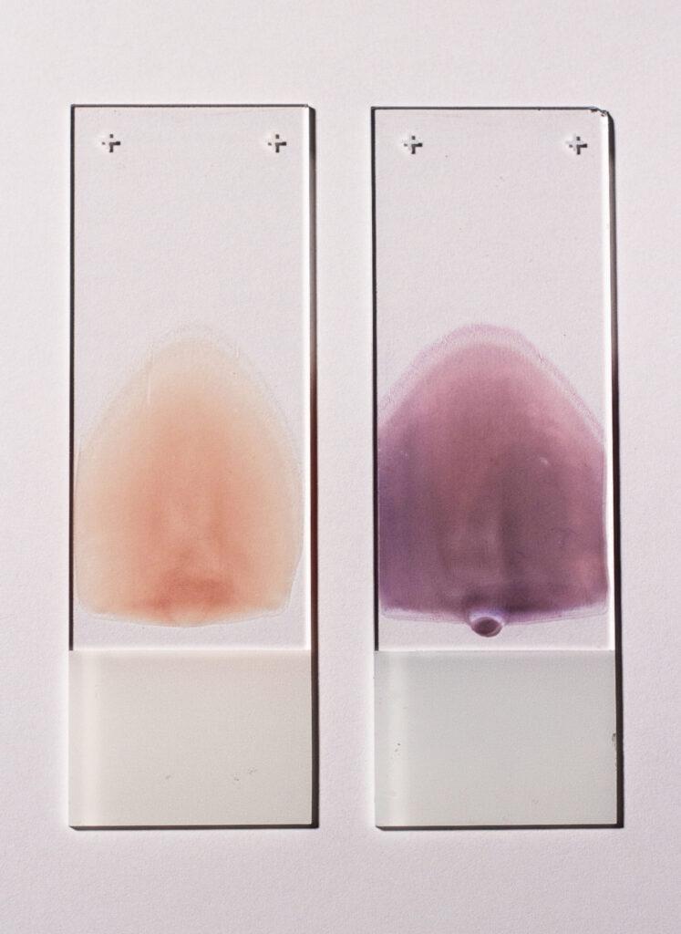 zwei Blutausstriche. Links ungefärbt, rechts gefärbt.
