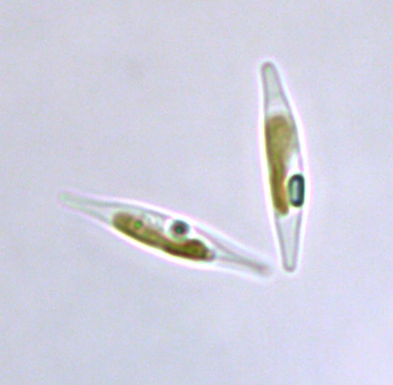 Plastikalge unter dem Mikroskop