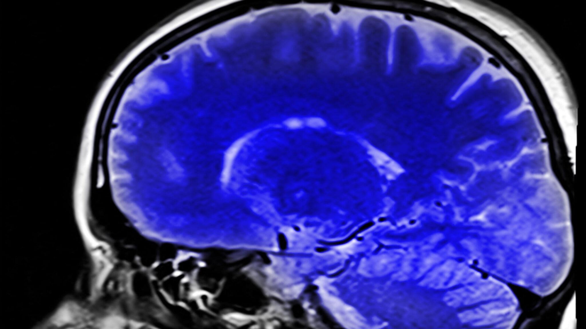 Scan eines Gehirns von der Seite