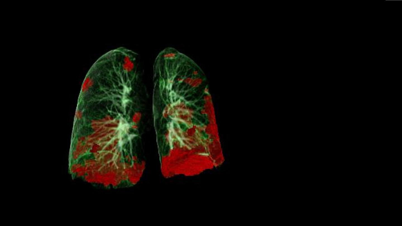 CT-Scan einer Lunge mit grünen und roten Bereichen.