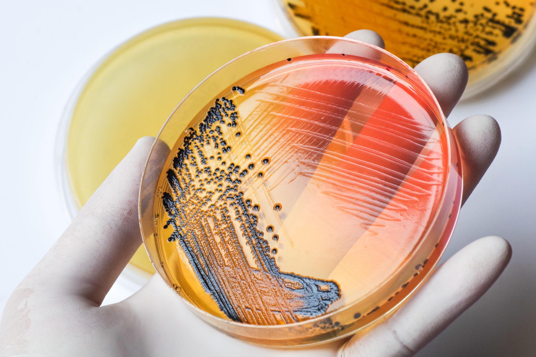 Petrischale mit Salmonellenkulturen